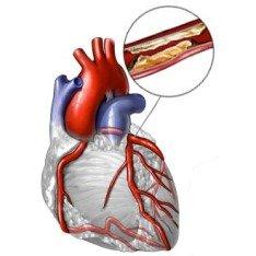 Признаки и причины возникновения атеросклероза сосудов