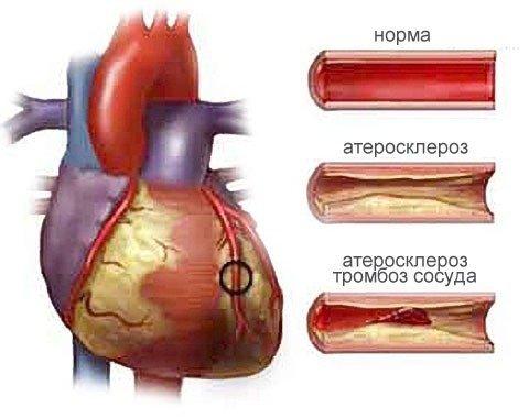 Причины атеросклероз сосудов