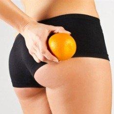 Целлюлит и апельсин