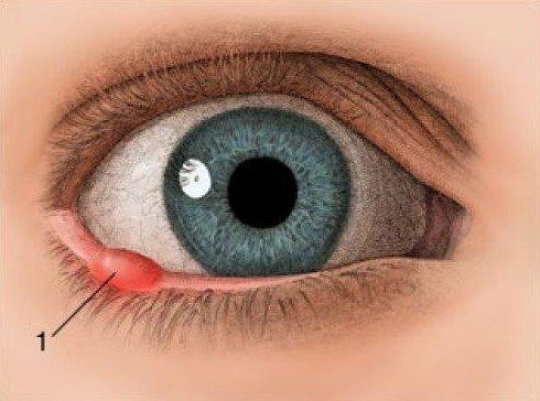 Ячмень под глазом (картинка)