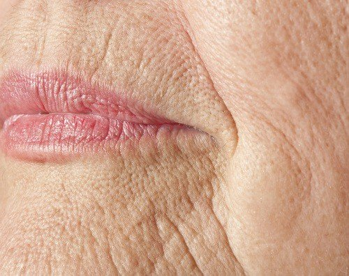 Морщины в носогубной зоне