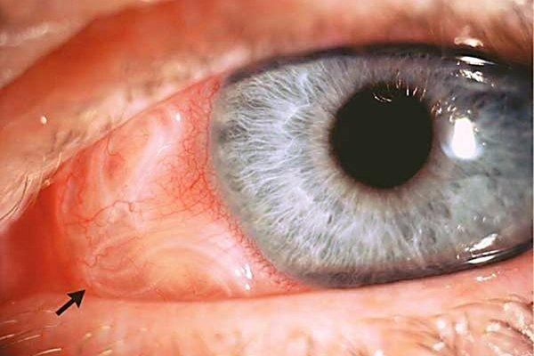 Гельминты в глазу